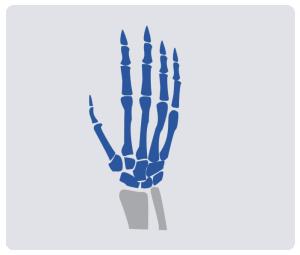 Wrist-&-Hand