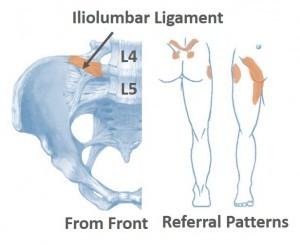 Liiolumbar Ligament